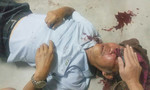 Bảo vệ chung cư đánh gãy sống mũi cụ ông ở Sài Gòn