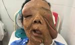 Mang bướu khủng trên mặt, người phụ nữ 10 năm không dám ra đường