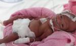 Hành trình 88 ngày cứu 2 bé song sinh cực nhẹ cân