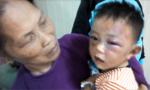 Bắt cha dượng bạo hành con riêng của vợ chấn thương nặng