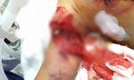 Bé gái dập phổi, nát thịt vùng ngực do pháo nổ
