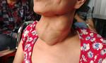 Người phụ nữ mang bướu cổ lâu năm bị suy thận