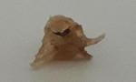 Ăn cháo lươn, bé 10 tháng tuổi hóc xương suýt chết