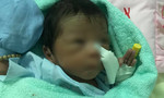 Bé trai sơ sinh bị chôn sống đã xuất viện