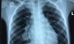 Bé trai ho ra máu, suýt vỡ động mạch phổi do mắc bệnh lạ