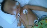 Hoàn cảnh bi đát của bé trai viêm màng não nguy kịch