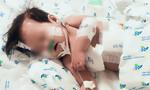 Nhiễm siêu vi khuẩn kháng thuốc, phổi bé gái chứa đầy dịch mủ