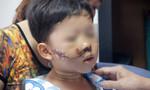 Nhiều trẻ té xe chấn thương đầu vì không đội mũ bảo hiểm