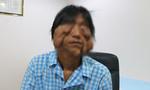 Mang khối u khủng trên mặt, người đàn ông 17 năm không ra khỏi nhà