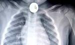 Mặt dây chuyền to hơn đồng xu chặn đường thở, bé trai 2 tuổi suýt chết