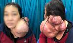 Cắt khối u khổng lồ đeo trên cổ người phụ nữ 25 năm