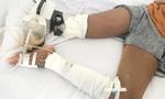 Thương tâm bé gái 13 tuổi phải đoạn chi vì cắt lể sau khi bị rắn cắn