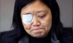 """""""Tên bay đạn lạc"""" lúc đưa tin về Hong Kong khiến nữ nhà báo mù mắt"""