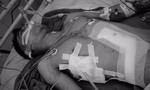Cứu sống bệnh nhân bị đâm thủng gan, tim