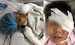Bác sĩ lo chuyện tai nạn giao thông ở trẻ nhỏ ngày Tết