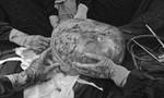 Khối u khổng lồ, nặng 30kg được lấy ra từ bụng cụ bà 78 tuổi