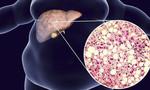 Gan nhiễm mỡ không do rượu và nguy cơ ung thư ngày càng tăng