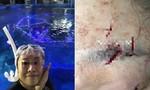 Người phụ nữ phải khâu hơn 70 mũi vì cá mập cắn ở công viên nước
