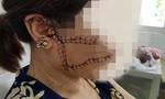 Gã chồng dã man dùng dao lam rạch nát mặt vợ chỉ vì mâu thuẫn