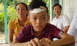 Xử lý nghiêm vụ học sinh lớp 7 bị bạn dúi đầu vào cửa kính