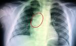 Lò xo đồ chơi kẹt trong đường thở của bé trai 4 tuổi