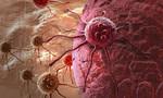 Thức ăn tế bào ung thư 'khoái khẩu'