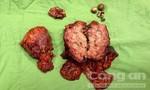 Nữ bệnh nhân bị ung thư túi mật, phẫu thuật cùng lúc 6 cơ quan