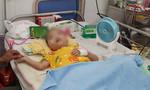 Cháu bé bị tim bẩm sinh, nhồi máu não thoát chết ngoạn mục