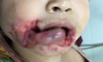 Bé trai bị chó ngoạm vào đầu trong lúc ăn xúc xích