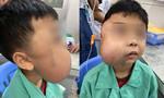 Cắt khối u vòm mũi họng khổng lồ cho bé trai 13 tuổi