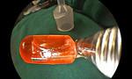 Đèn Led đồ chơi 'đi lạc' vào phổi bé gái 10 tháng tuổi