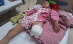 Xin giúp bé gái 9 tuổi phải cưa chân để bảo toàn tính mạng