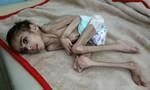 Xót xa cậu bé Yemen 7 tuổi nặng chỉ 7kg vì nạn đói