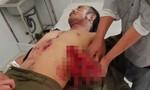 Tự chế mìn đánh cá, 7 người bị thương