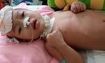 Cuộc sống mong manh của cháu bé 3 tuổi, mong được giúp!