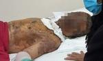 Con trai chết do TNGT, cha đau lòng quẫn trí tẩm xăng tự tử
