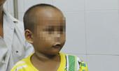 Người nhà phát hoảng khi bé trai 4 tuổi ho phát ra tiếng kèn kêu te te