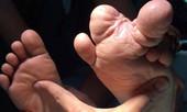 Bé trai có những ngón chân khổng lồ