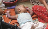 TP.HCM: Bệnh sởi, sốt xuất huyết, tay chân miệng tiếp tục tăng