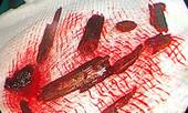 Gắp hàng chục mảnh cây vụn trong hốc mắt người đàn ông