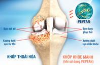 PEPTAN thiên nhiên - Giải pháp vượt trội cho bệnh xương khớp