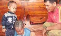 """Xót xa hoàn cảnh hai anh em """"người cá"""" tại Lâm Đồng"""