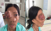 Xót xa người phụ nữ bán vé số không thở được bằng mũi do ung thư