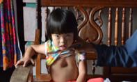 Cháu bé bị lõm ngực bẩm sinh cầu cứu