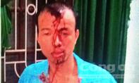 Nhân viên xe buýt bị đánh chảy máu đầu