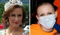Hoa hậu giả bệnh ung thư để lừa tiền nhà hảo tâm