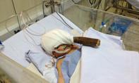 Clip: Hành trình phẫu thuật cứu bé trai bị đâm xuyên sọ rúng động bệnh viện