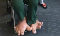 Thiếu nữ 20 tuổi khốn khổ vì đôi chân khổng lồ
