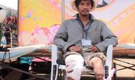 Không tiền chạy chữa, người đàn ông đành ngồi nhìn đôi chân mất dần