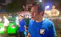 Cãi nhau với bảo vệ siêu thị lúc gửi xe, nam thanh niên bị đánh te tua